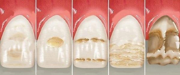 некариозные поражения зубов