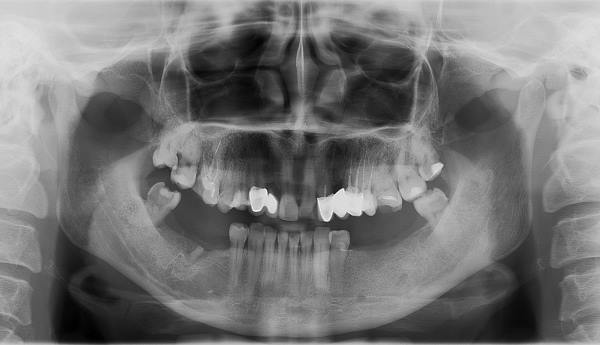 рентгенодиагностика зубов - снимок