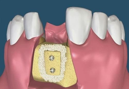 костная пластика - изображение