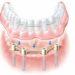 Съемный протез на имплантах - балочная фиксация