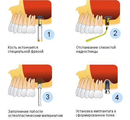 Закрытый синус-лифтинг - схема