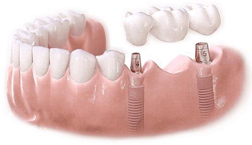 безметалловая коронка на три зуба